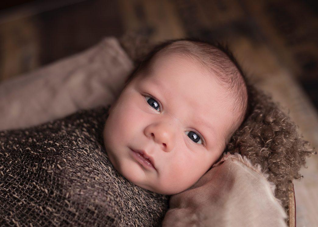 berg op de hoofdhuid van je baby